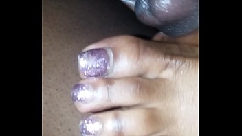 toes and soles mild Spit puddle malika
